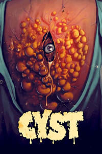 Cyst | Watch Movies Online