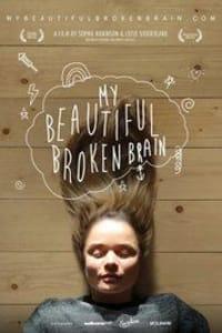 My Beautiful Broken Brain | Bmovies